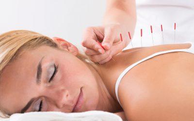 Informationen zur Akupunktur in Theorie und Praxis